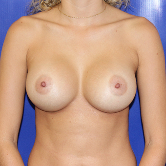 25-34 year old woman treated with Breast Augmentation after 3212070