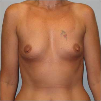37 year old woman treated with Breast Augmentation before 3468351