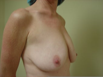 Breast Lift with Implants before 1158626