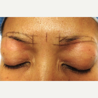 45-54 year old woman treated with Eyebrows restoration goals