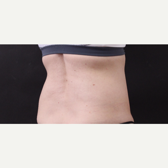 49 year old woman treated with CoolSculpting before 3630251