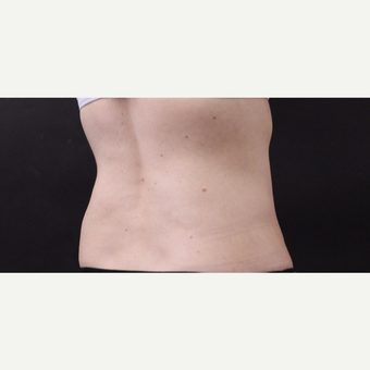 49 year old woman treated with CoolSculpting after 3630251