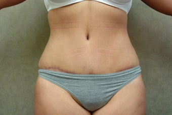 C.L.A.S.S ® Tummy Tuck after 1298002