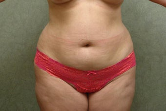 C.L.A.S.S ® Tummy Tuck before 1298002