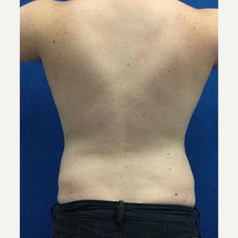 25-34 year old man treated with Tumescent Liposuction after 3495997