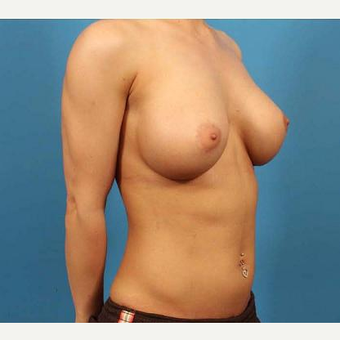 25-34 year old woman treated with Breast Implants after 3076267