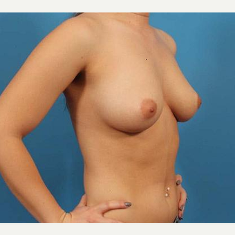 25-34 year old woman treated with Breast Implants before 3076267