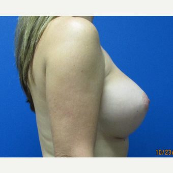 37 year old woman 550cc ultra high profile silicone implants after 3370894