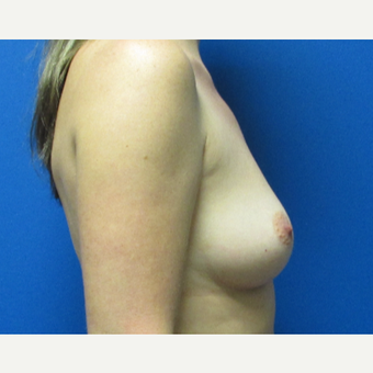 37 year old woman 550cc ultra high profile silicone implants before 3370894