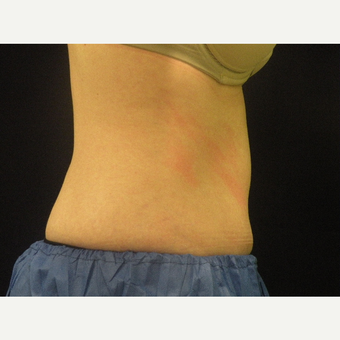 25-34 year old woman treated with CoolSculpting after 3680245
