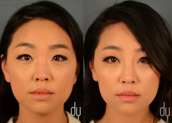 Nonsurgical Rhinoplasty | Nose Job with Restylane and Botox for masseter reduction before 1380252