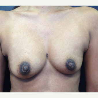 18-24 year old woman treated with Breast Augmentation before 3021856
