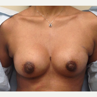 18-24 year old woman treated with Breast Augmentation after 3021856