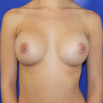 18-24 year old woman treated with Breast Augmentation 1806975