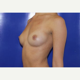 18-24 year old woman treated with Breast Augmentation before 1806975