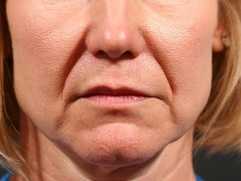 Juvederm Ultra XC to nasolabial folds before 1134749