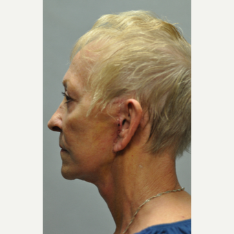65-74 year old woman treated with Neck Lift after 3522317