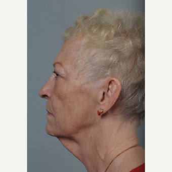 65-74 year old woman treated with Neck Lift before 3522317