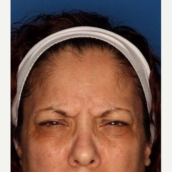 45-54 year old woman treated with Botox before 3715445