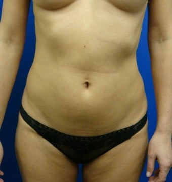39 year old after liposculpture (SmartLipo)