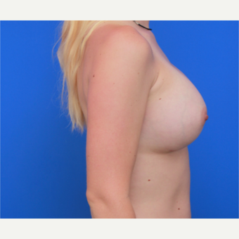 26- year old woman treated with Breast Implants after 3004636
