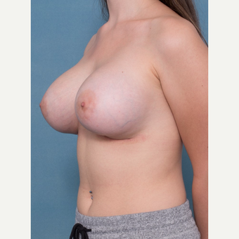 18-24 year old woman treated with Breast Augmentation after 3062123