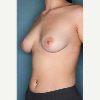 18-24 year old woman treated with Breast Augmentation before 3062123