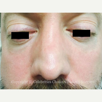 35-44 year old man treated with Revision Rhinoplasty before 3198206