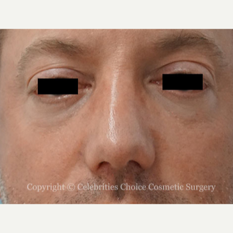 35-44 year old man treated with Revision Rhinoplasty after 3198206