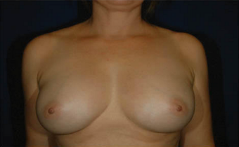Natural Breast Augmentation with a Patients Own Fat after 1085562