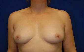 Natural Breast Augmentation with a Patients Own Fat before 1085562