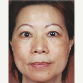 45-54 year old woman treated with Melasma Treatment  with Obagi Nu Derm Skin Transformation System before 2581695