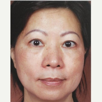45-54 year old woman treated with Melasma Treatment  with Obagi Nu Derm Skin Transformation System after 2581695