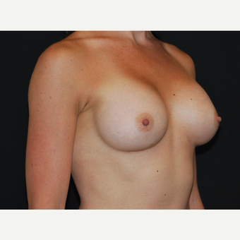 25-34 year old woman treated with Breast Implants after 3651613