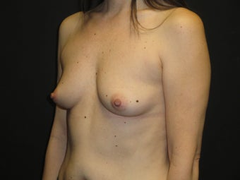 Implant-based breast reconstruction 867387