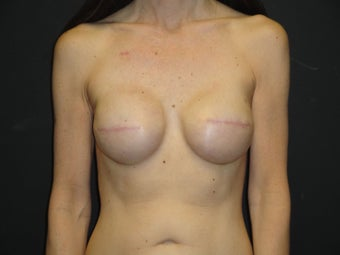 Implant-based breast reconstruction after 867387