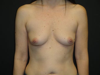 Implant-based breast reconstruction before 867387