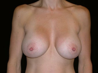 Breast augmentation after 293960
