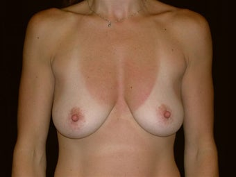 Breast augmentation before 293960