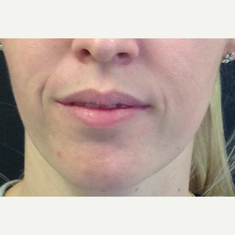 25-34 year old woman treated with Juvederm before 3731756