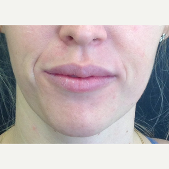 25-34 year old woman treated with Juvederm after 3731756
