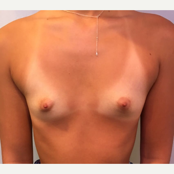 18-24 year old woman treated with Breast Augmentation before 3783473