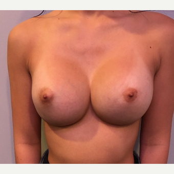 18-24 year old woman treated with Breast Augmentation after 3783473