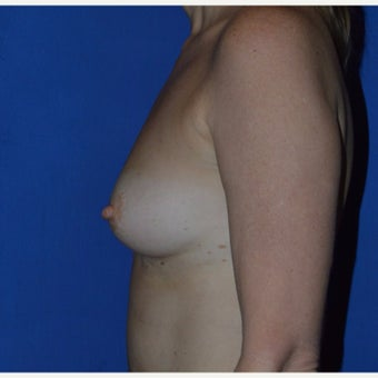 25-34 year old woman treated with Breast Fat Transfer 1867642