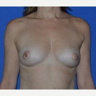 25-34 year old woman treated with Breast Fat Transfer before 1867642