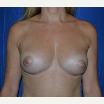 25-34 year old woman treated with Breast Fat Transfer after 1867642