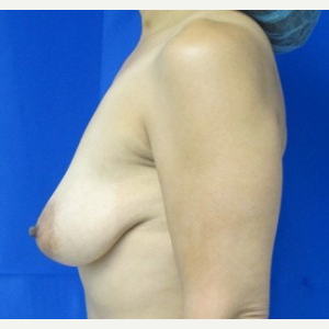 Breast Augmentation before 3054813