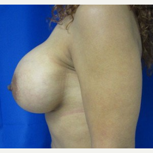 Breast Augmentation after 3054813