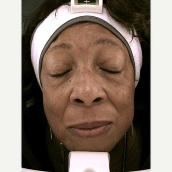 75 and up year old woman treated with Melasma Treatment after 2272554