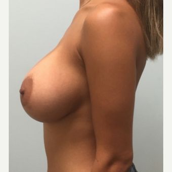 Breast augmentation with Natrelle Inspira implants on 5'2, 127 pound mother of 2 after 3089459